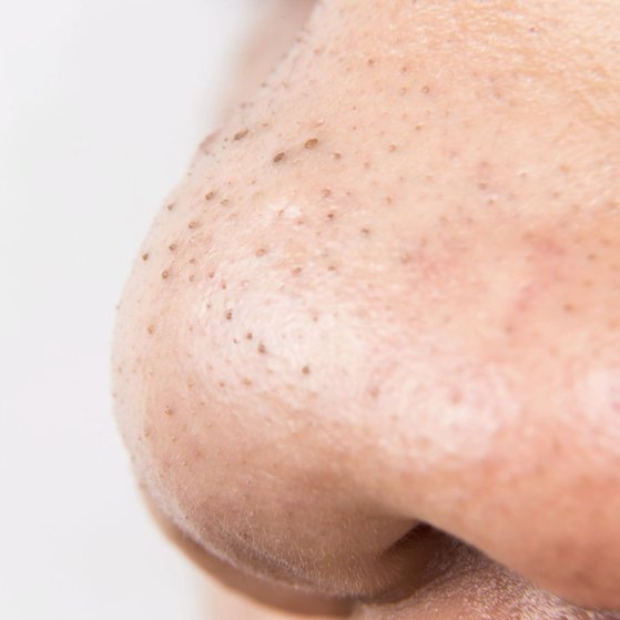 Can you can scrub off blackheads?