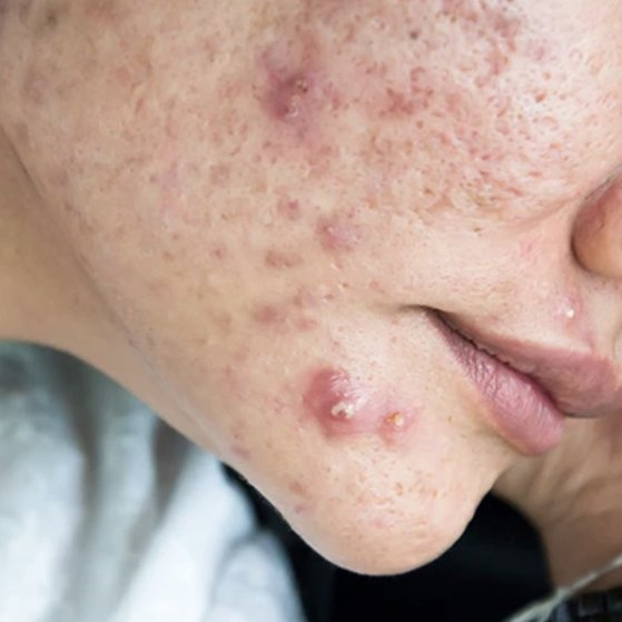 Cystic Acne: What is it and what can you do about it?